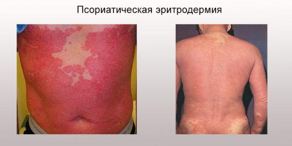 Псориатическая эритродермия фото